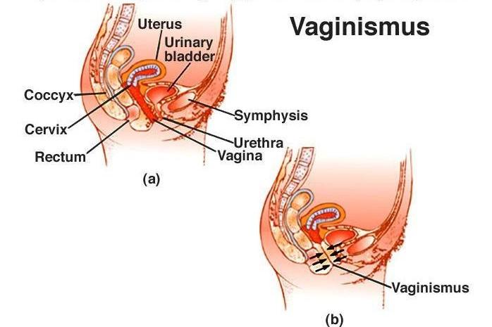 واژینیسموس (دخول دردناک)