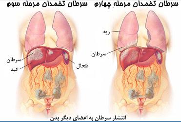 مراحل سرطان تخمدان