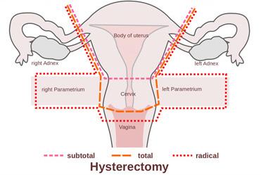 همه چیز درباره هیسترکتومی