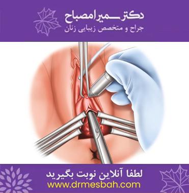 جراحی زیبایی واژینوپلاستی