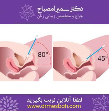 قبل و بعد از عمل تنگ کردن واژن